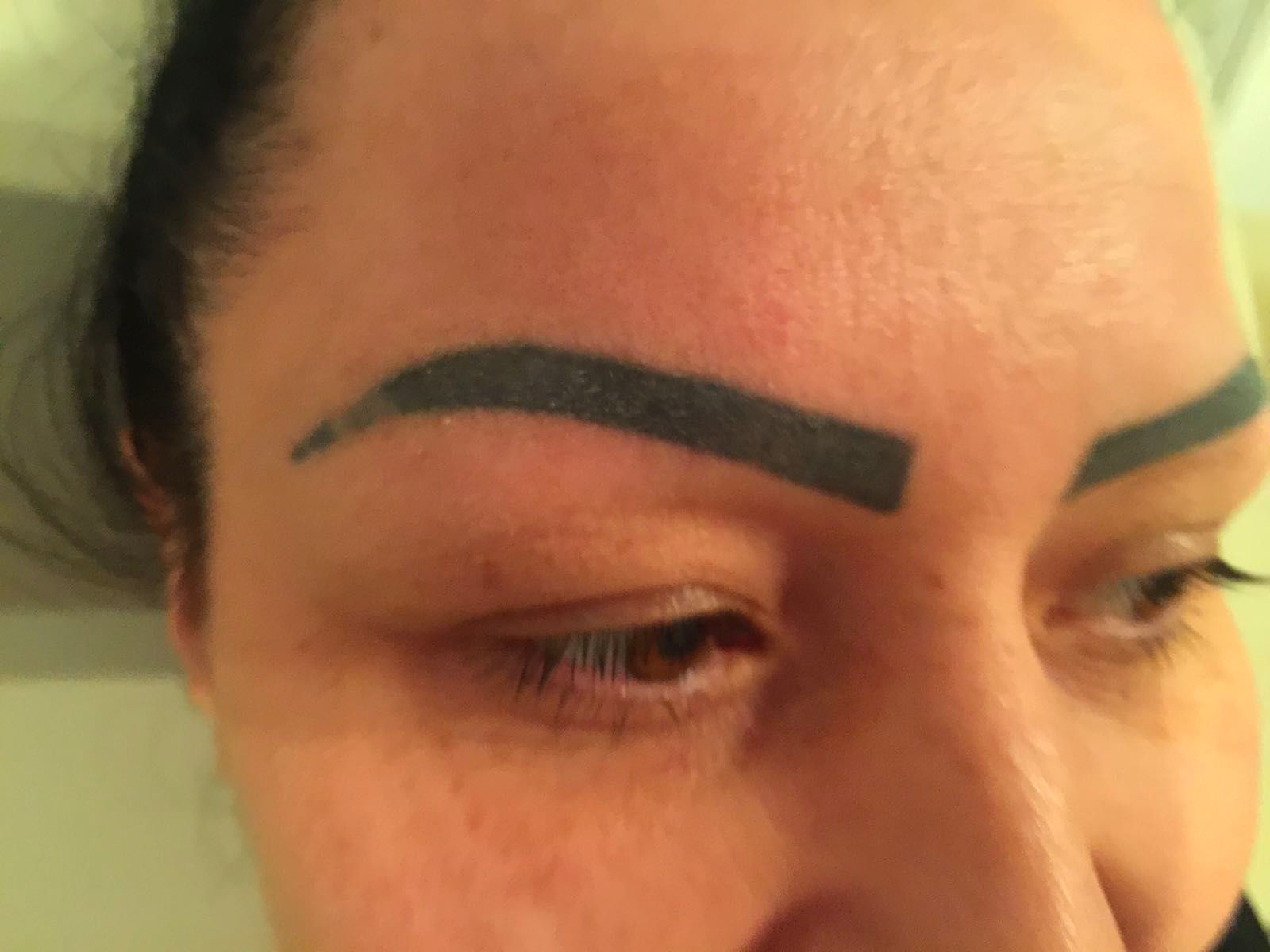Eyebrow Tattoo Removal | Tattoo Removal Experts