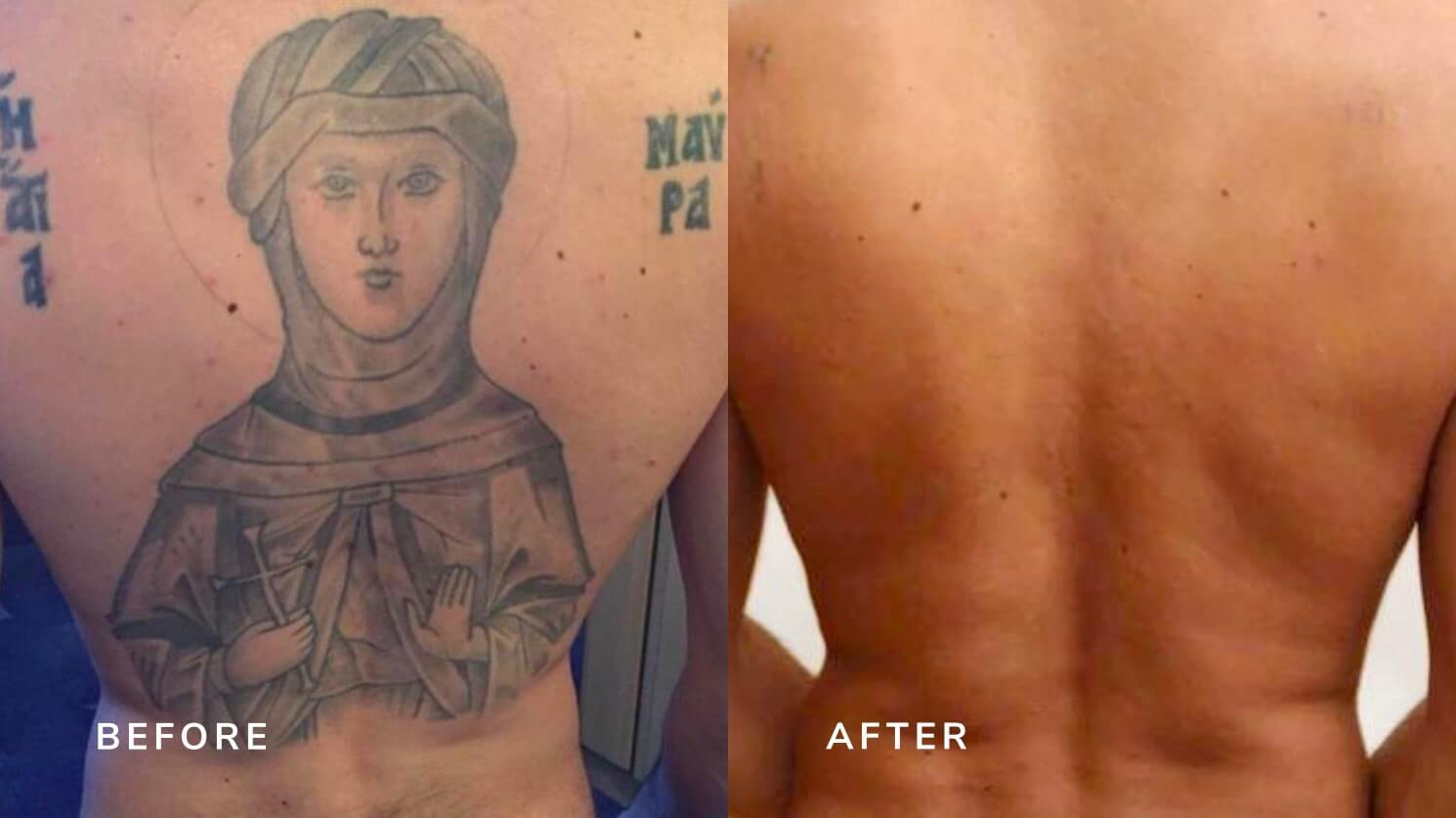 tattoo removal in london before and after
